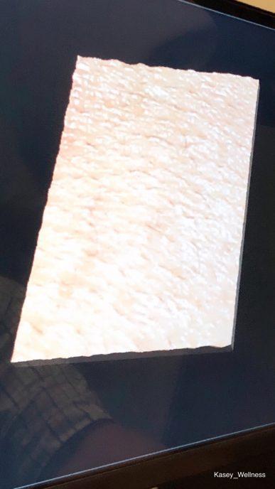 VISIA Skin comparison